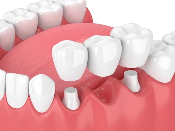 Dental crowns and bridges for Allentown and Whitehall residents