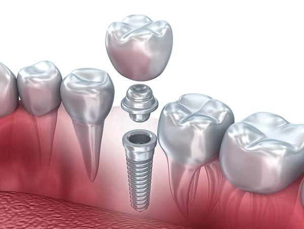 Dental implants in Allentown, Whitehall, Lehigh Valley