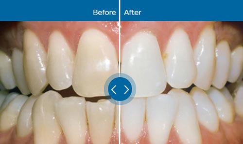 Teeth whitening treatment in Allentown PA with Philips Zoom