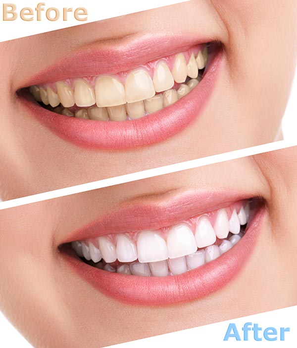 Teeth whitening in Allentown, Lehigh Valley